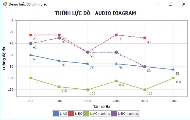 biểu đồ thính lực học