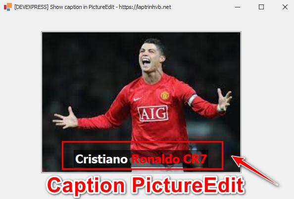 [DEVEPXRESS] Hướng dẫn hiển thị tiêu đề caption trên hình ảnh sử dụng PictureEdit